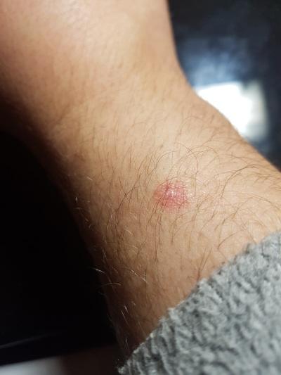Verbrennung am Arm